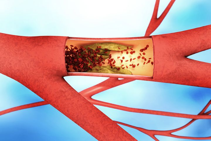 Chinese Scientists Create Blood Flow Sensor to Warn About Thrombosis