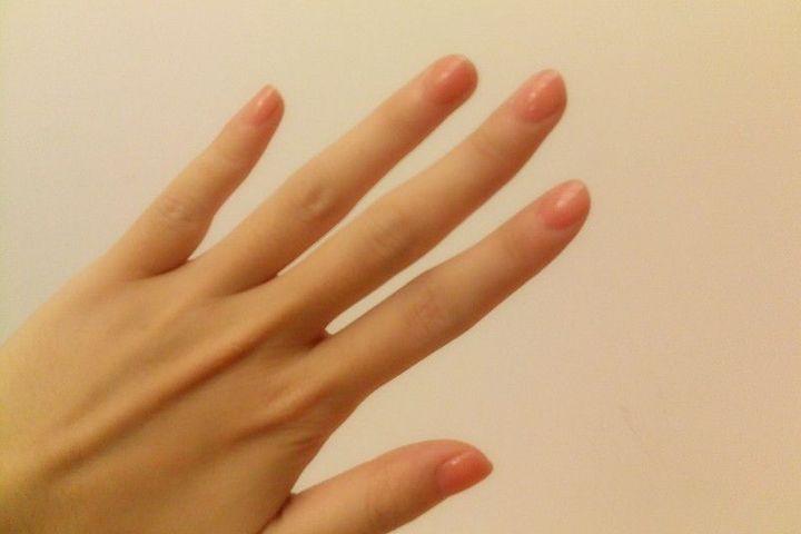 Chongqing Institute of Graphene Develops Artificial Skin, Starts Clinical Trials